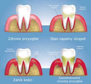 periodontolog poznan